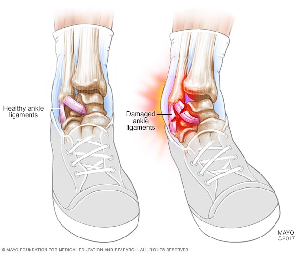 Illustration showing a sprained ankle