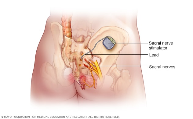 Illustration showing implanted nerve stimulation device