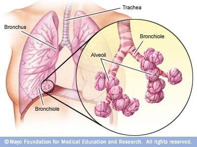 Illustration showing bronchi, bronchioles and alveoli