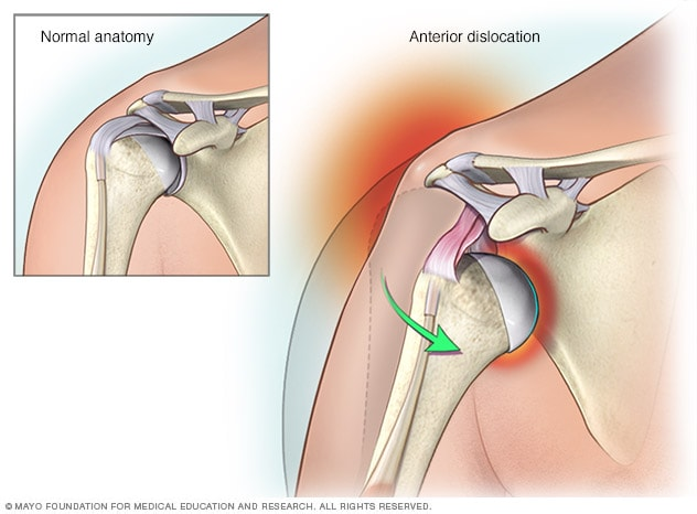 Illustration of shoulder dislocation