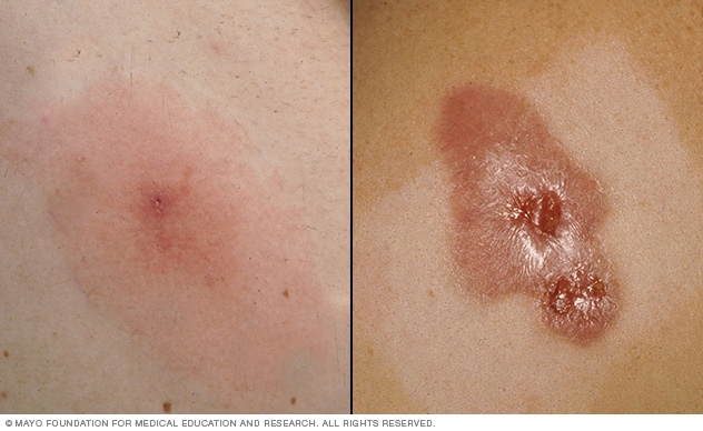 Photos of two staph infections: one minor, and one serious