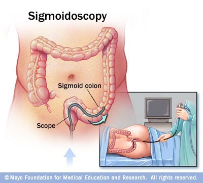 Illustration of flexible sigmoidoscopy exam