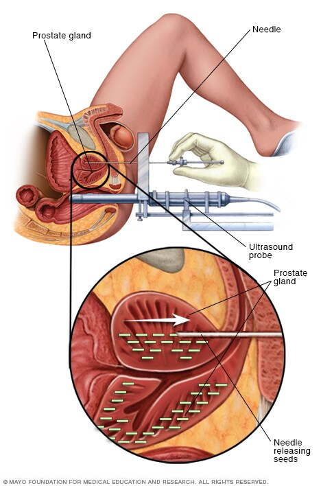Illustration showing permanent prostate brachytherapy