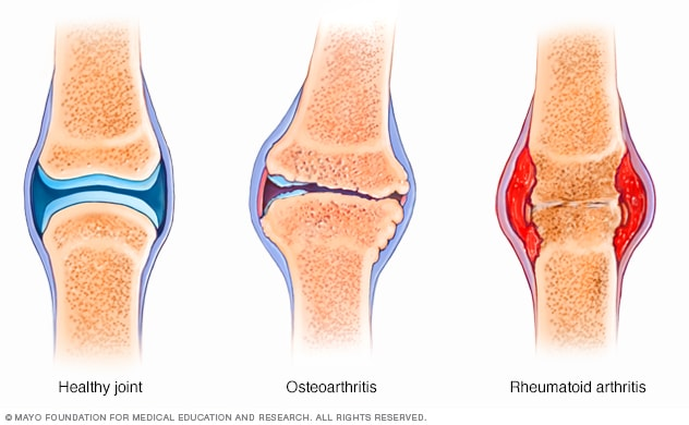 Illustration showing difference between osteoarthritis and rheumatoid arthritis