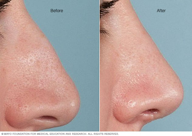 Before-and-after results of rhinoplasty