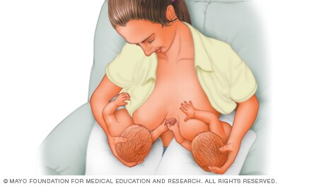 Illustration of woman breast-feeding twins with football hold