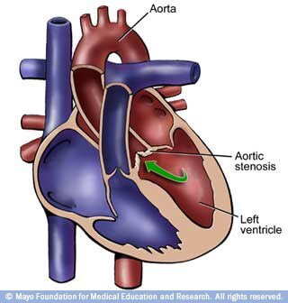 Image of heart with aortic stenosis