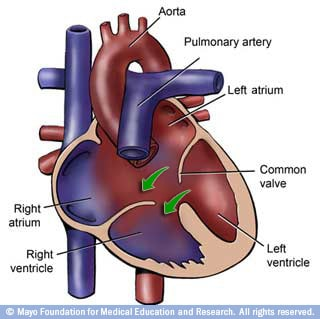 Image of heart with atrioventricular canal defect