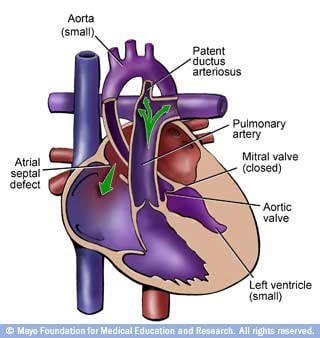 Image of heart with hypoplastic left heart syndrome