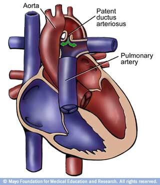 Image of heart with patent ductus arteriosus