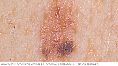 Mole that may become melanoma