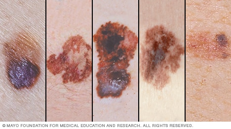 Melanoma pictures for self-examination
