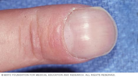 Photo of nail clubbing