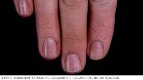 Photo of nail pitting