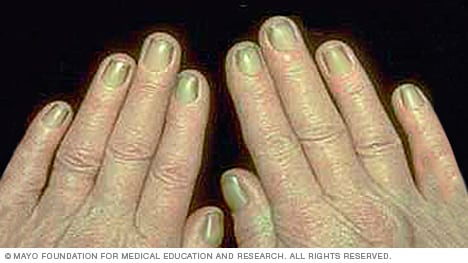 Photo of yellow nail syndrome