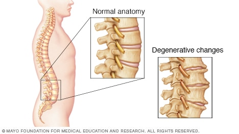Illustration of spine with degenerative changes