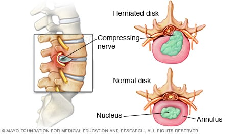 Illustration of normal and herniated spinal disk