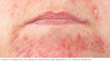 Photo of perioral dermatitis