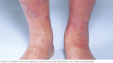 Photo of stasis dermatitis