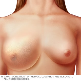 Illustration of inflammatory breast cancer