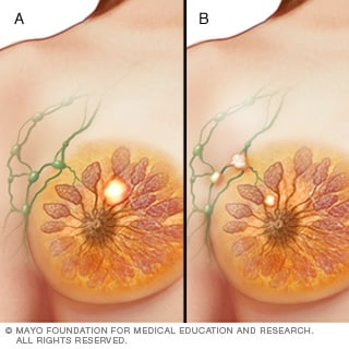 Illustration of stage II breast cancer