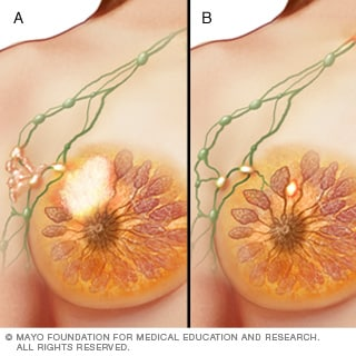 Illustrations of stage III breast cancer
