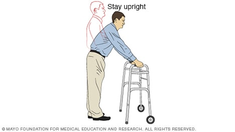 Illustration of a person using a walker incorrectly