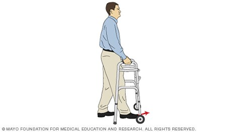 Illustration of a person moving forward with a walker