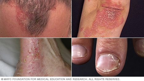 Psoriasis pictures, including scalp psoriasis and plaque psoriasis
