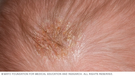 Photo of cradle cap