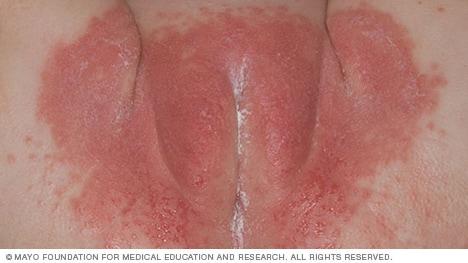 pityriasis rosea traitement