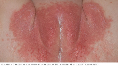 Photograph of diaper rash