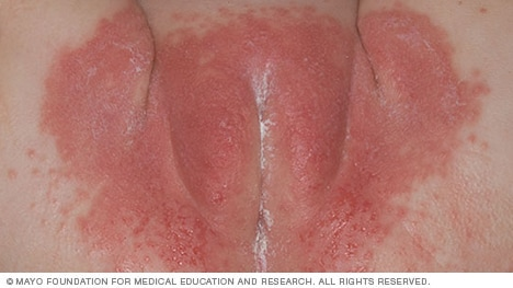 Photo of diaper rash