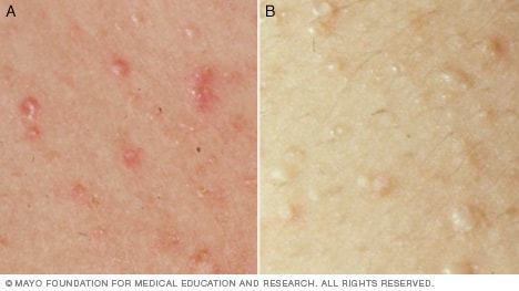 Photos of heat rash