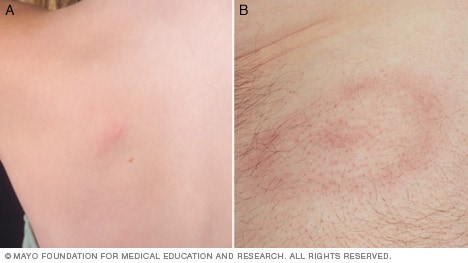 Photos of Lyme disease rash