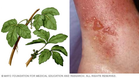 Photo of poison ivy plant and rash