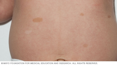 Pictures of birthmarks, including cafe au lait birthmark and port-wine stain birthmark