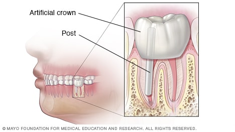 Illustration showing final results of root canal and crown