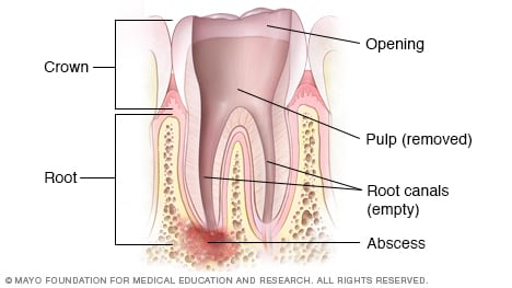 Illustration showing cleaned root canal