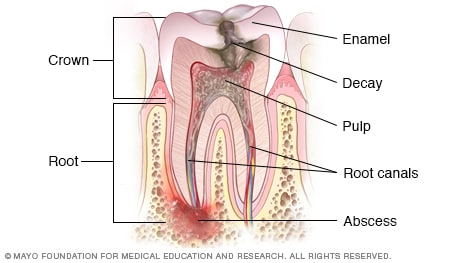 Illustration of tooth abscess and decay before root canal