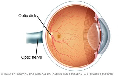 Illustration of the eye showing the optic nerve and optic disk
