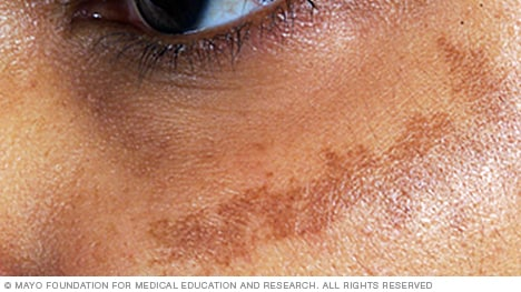 Image of melasma