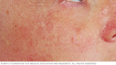 Do Tanning Beds Cause Age Spots