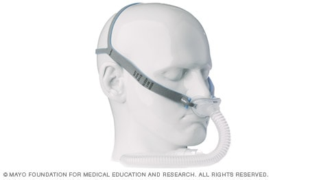Photo example of CPAP mask