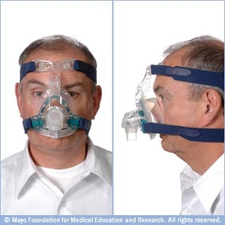 Photos of nasal CPAP mask that suctions to face and has side straps