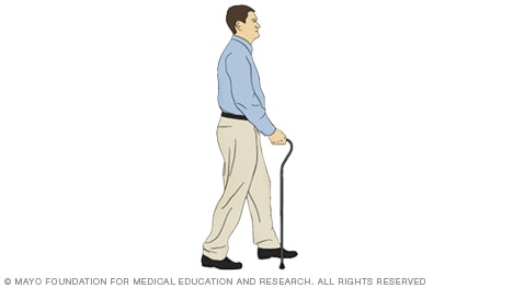 Illustration of a person taking a step with a cane