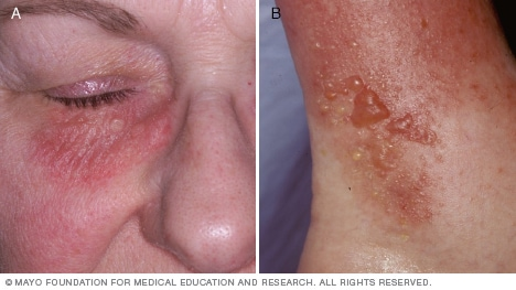 Contact dermatitis image