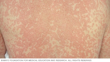 Drug rash image