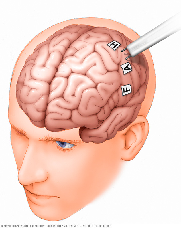 Illustration of brain mapping procedure