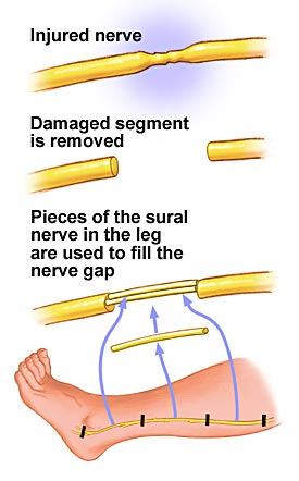 Illustration of a nerve graft from the lower leg